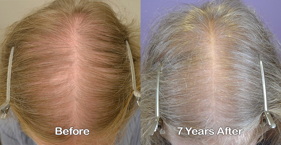 7 Year Follow Up On Oral Therapy For Female Hair Loss Hair Restoration Of The South