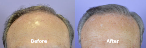 80 year old male hairline before and after hair transplant. FUT harvest. Norwood Class 5