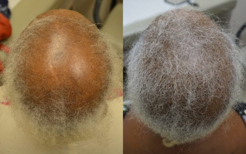 66 year old African American female before and after 2 hair transplant sessions.