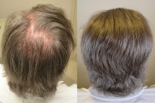 50 year old male with hairline restoration - 1650 grafts hairline and crown.