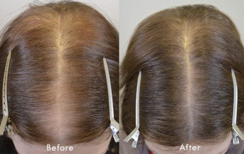 Finasteride Results Archives Hair Restoration Of The South