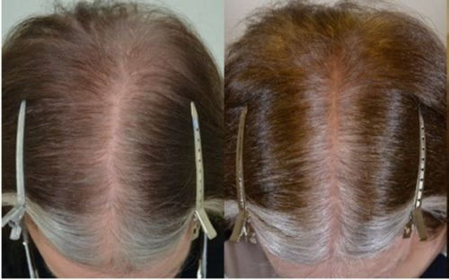 62 year old female patient started with minoxidil and finasteride but didn't tolerate minoxidil. After (R) 6 months after starting treatment.