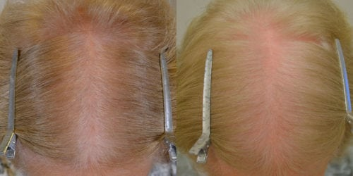 75 year old female on finasteride 5mg daily and using topical minoxidil 5% twice weekly for 7 months .