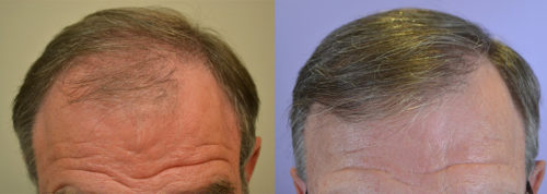 70 year old male - Norwood Hair Loss Classification 5/6 - 2 Sessions - Total of 2,943 total grafts harvested via FUT.