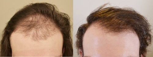 24 year old male, before and 1 year after 1515 hair grafts. Front view