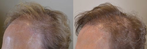 Hair Transplant to Conceal Browlift - 72 year old female