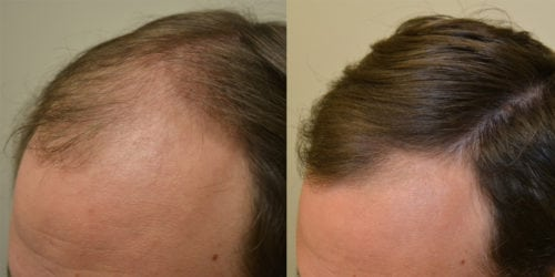 Before and 6 months after initiating treatment with Propecia.