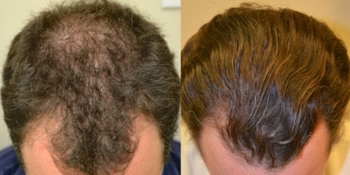 Before and 24 months after initiating treatment with Propecia.