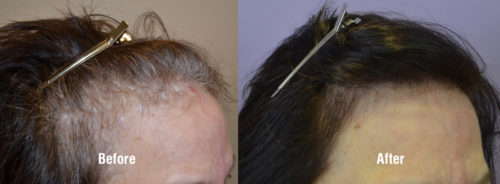 66 year old female with high receded hairline before and 1 year after FUT hair transplantation.
